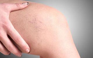 Синие вены на ногах, причины, симптомы, методы лечения, риски