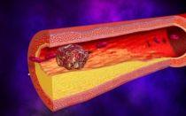Признаки тромба в ноге, тромбоз, вены, симптомы, последствия