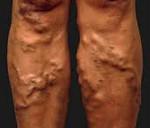 Перфорантный варикоз - причины, симптомы,диагностика, лечение
