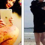 Синдром Клиппеля-Треноне - причины, диагностика, лечение