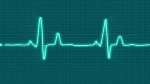 Медленный пульс - что делать, причины, последствия, риски, лечение