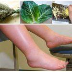 Народные средства от отеков ног при варикозе, методы, рецепты