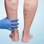 Флеболит - причины, симптомы, осложнения, диагностика