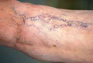 Обострение варикоза, причины, симптомы, риски, методы лечения, прогнозы