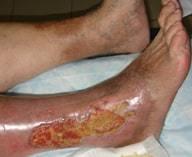 Посттромбофлебитический синдром - симптомы, диагностика, лечение