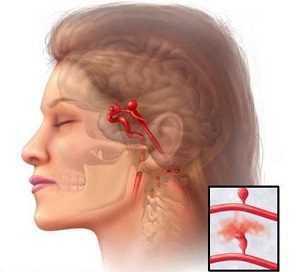 Синус тромбоз, причины, симптомы, диагностика, лечение, чем опасно