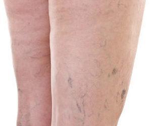 Лечение варикоза по Неумывакину - особенности, плюсы, ограничения