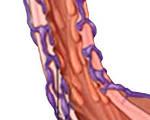 Варикозное расширение вен пищевода и желудка, что это, опасности, лечение