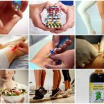Ретикулярный варикоз нижних конечностей, причины, симптомы, лечение