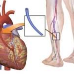 Коронарное шунтирование сердца - показания, техника проведения