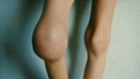 Гемофилия - причины, симптомы, опасности, проявления, диагностика