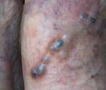 Гнойный тромбофлебит: причины, симптомы, риски, лечение