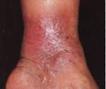 Варикозный дерматит - причины, симптомы, лечение, профилактика