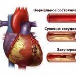Артериальный тромбоз - причины, симптомы, диагностика, лечение