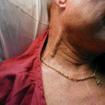 Варикоз половых органов при беременности, виды, причины, лечение